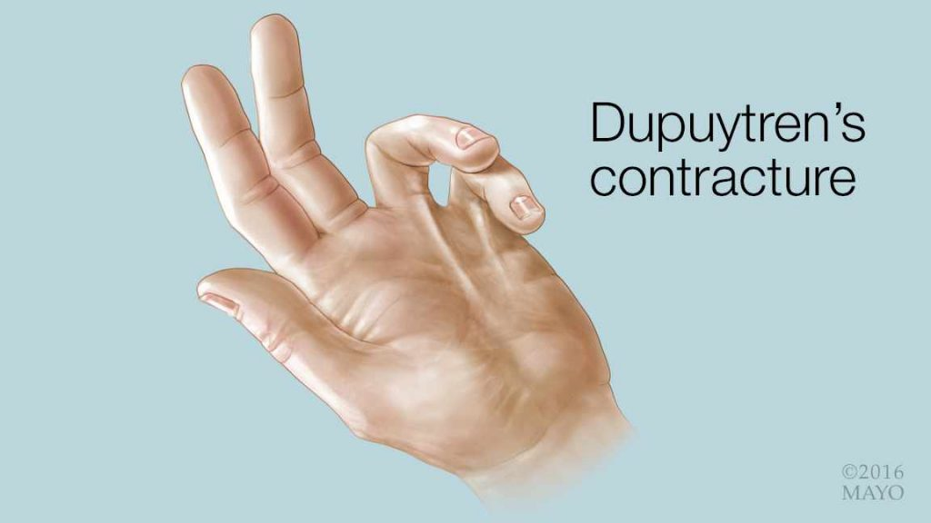 medical illustration of a hand with Dupuytren's contracture