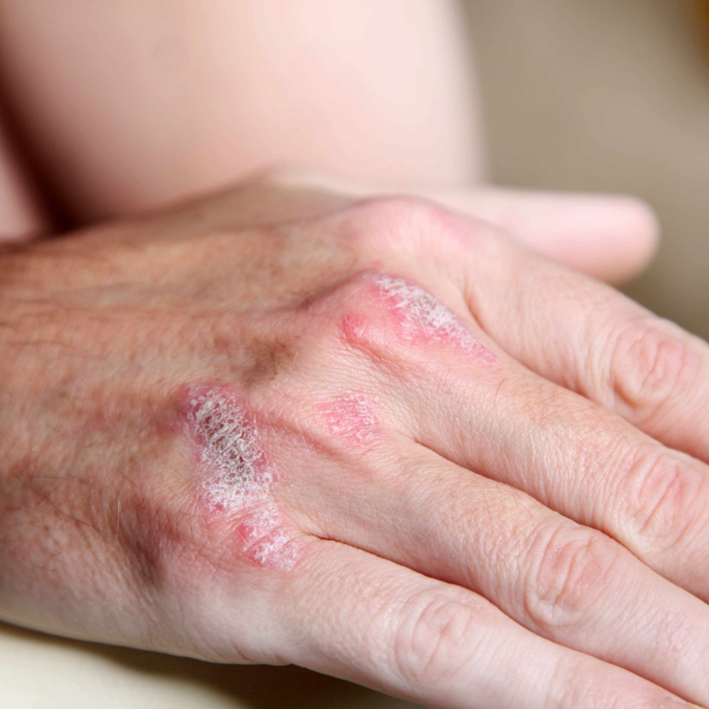 psoriasis on a person's hand, red, inflamed, dry and sore