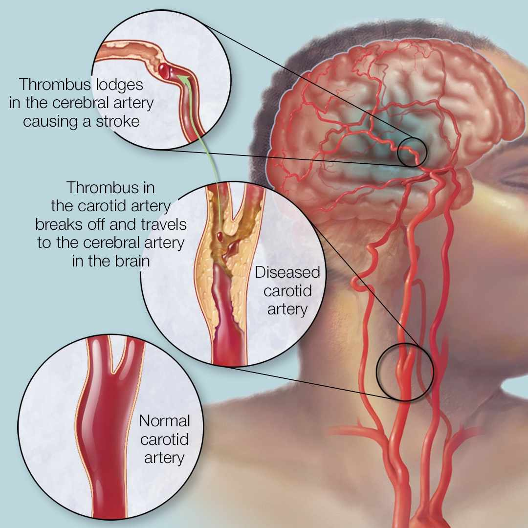 medical illustration depicting stroke