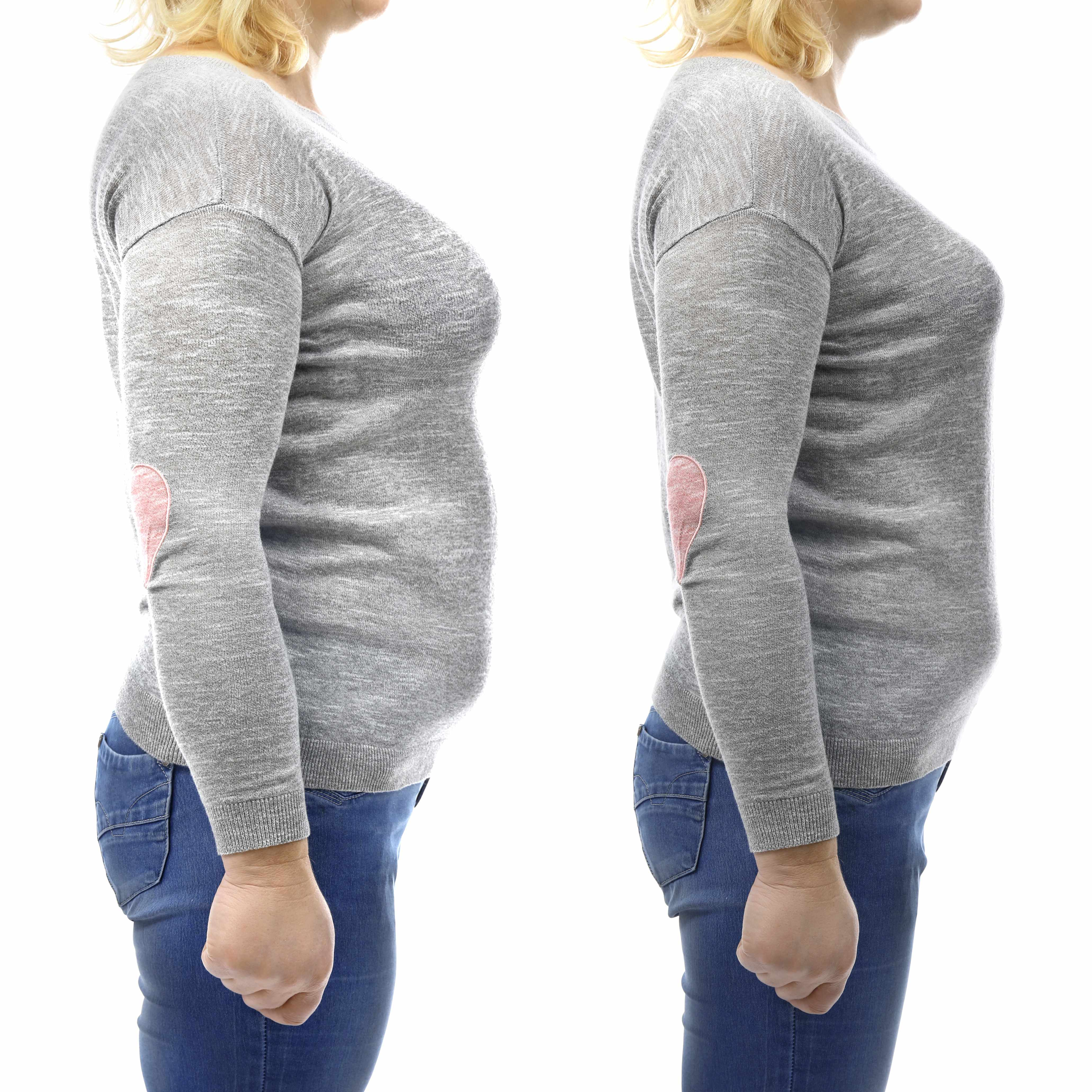 three side views of a woman in the process of losing weight, especially around the belly