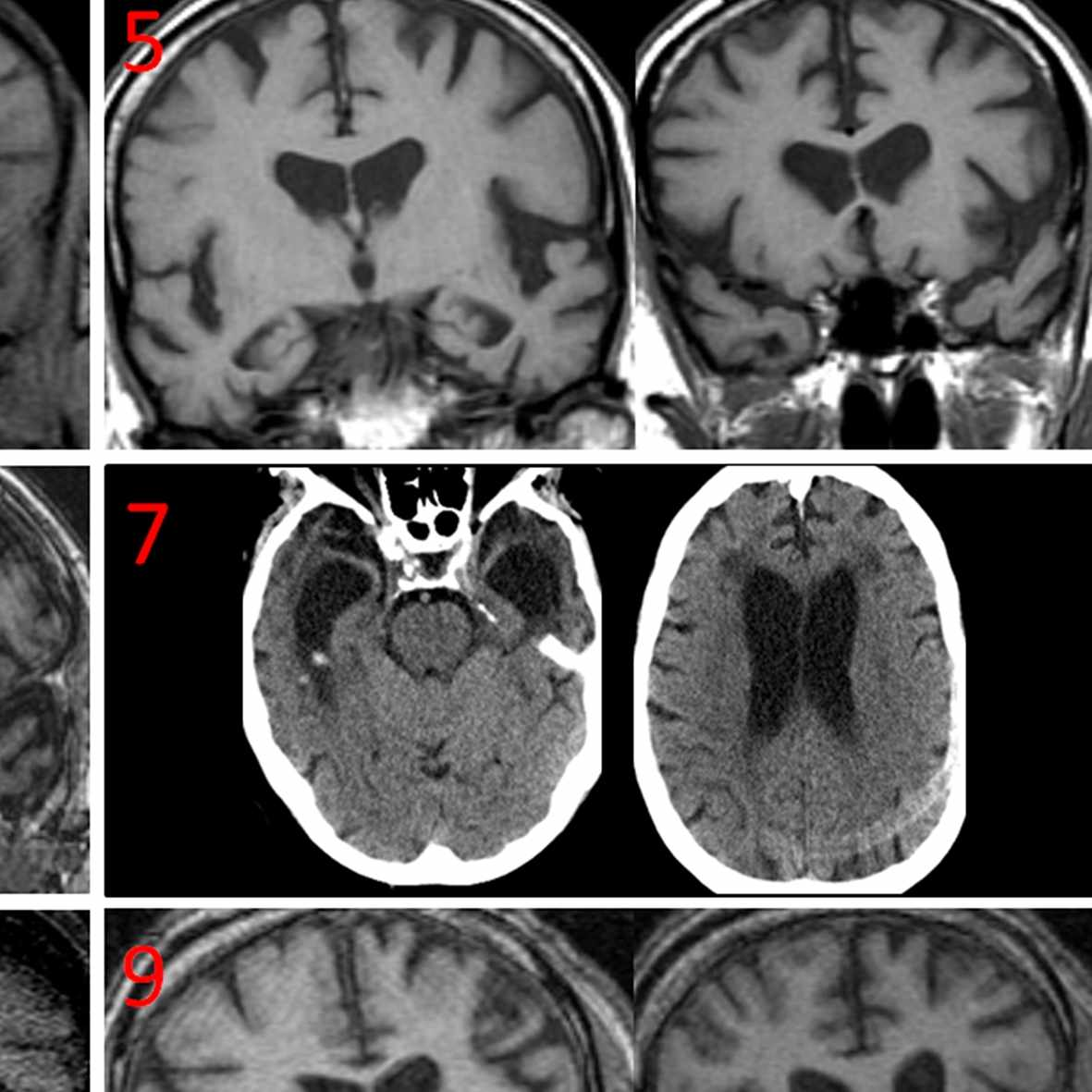 Brain scans of the six dementia patients who exhibited coprophagia showed medial temporal lobe atrophy, or degeneration