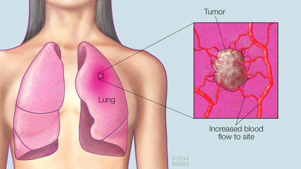 a medical illustration of lungs, a lung cancer tumor and increased blood flow to the site