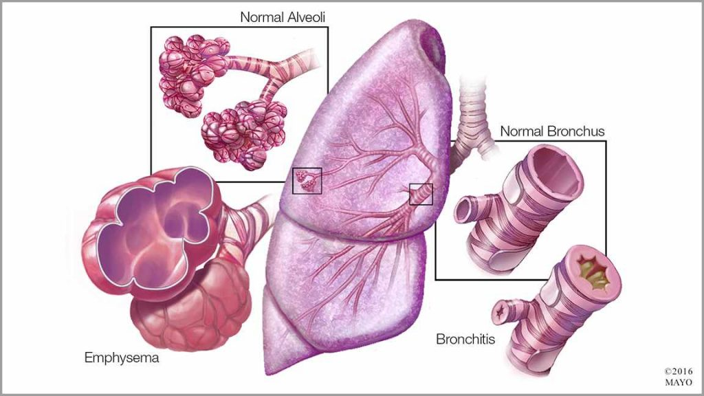 medical illustration showing a lung, normal alveoli, emphysema, normal bronchus, and bronchitis
