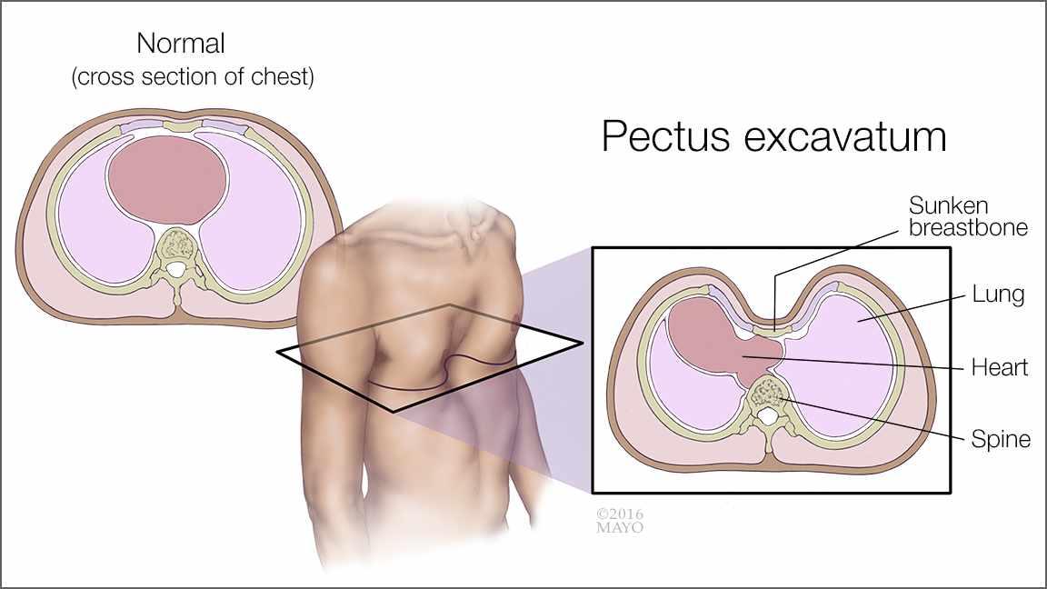 Ilustración del pectus excavatum (tórax excavado) y de un tórax normal