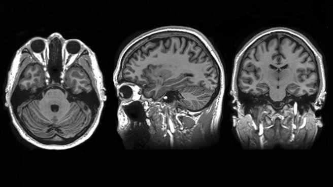 Exploración por resonancia magnética del cerebro