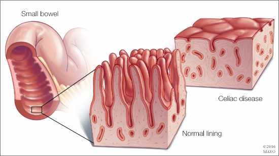 a medical illustration of a normal small bowel and one with celiac disease