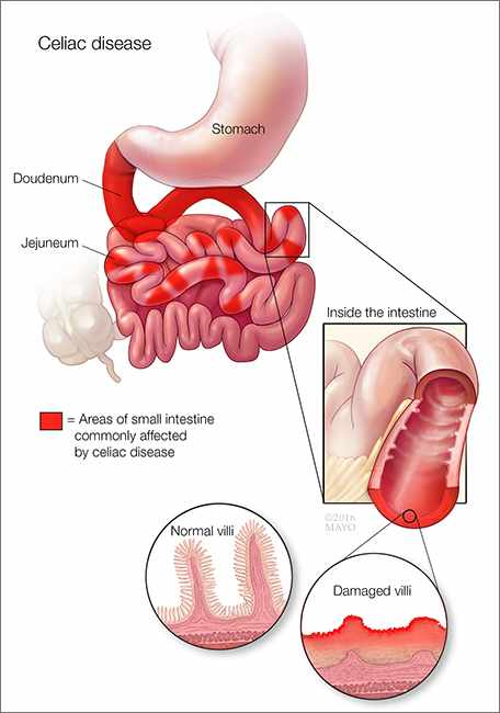 a medical illustration of celiac disease