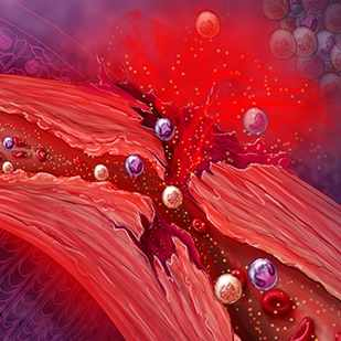 a medical illustration of granulomatosis with polyangiitis