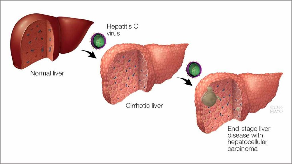 a medical illustration of the effects of hepatitis C virus on the liver