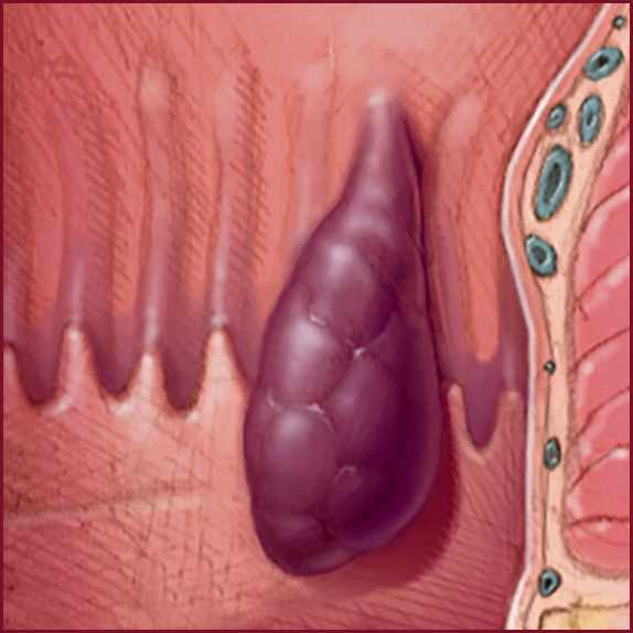 a medical illustration showing an internal hemorrhoid
