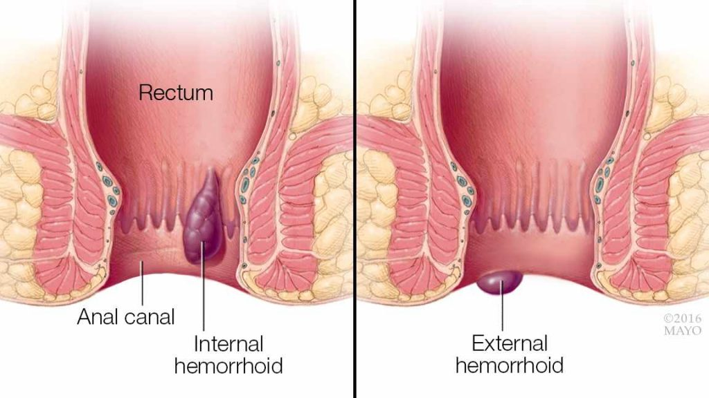 a medical illustration showing internal and external hemorrhoids