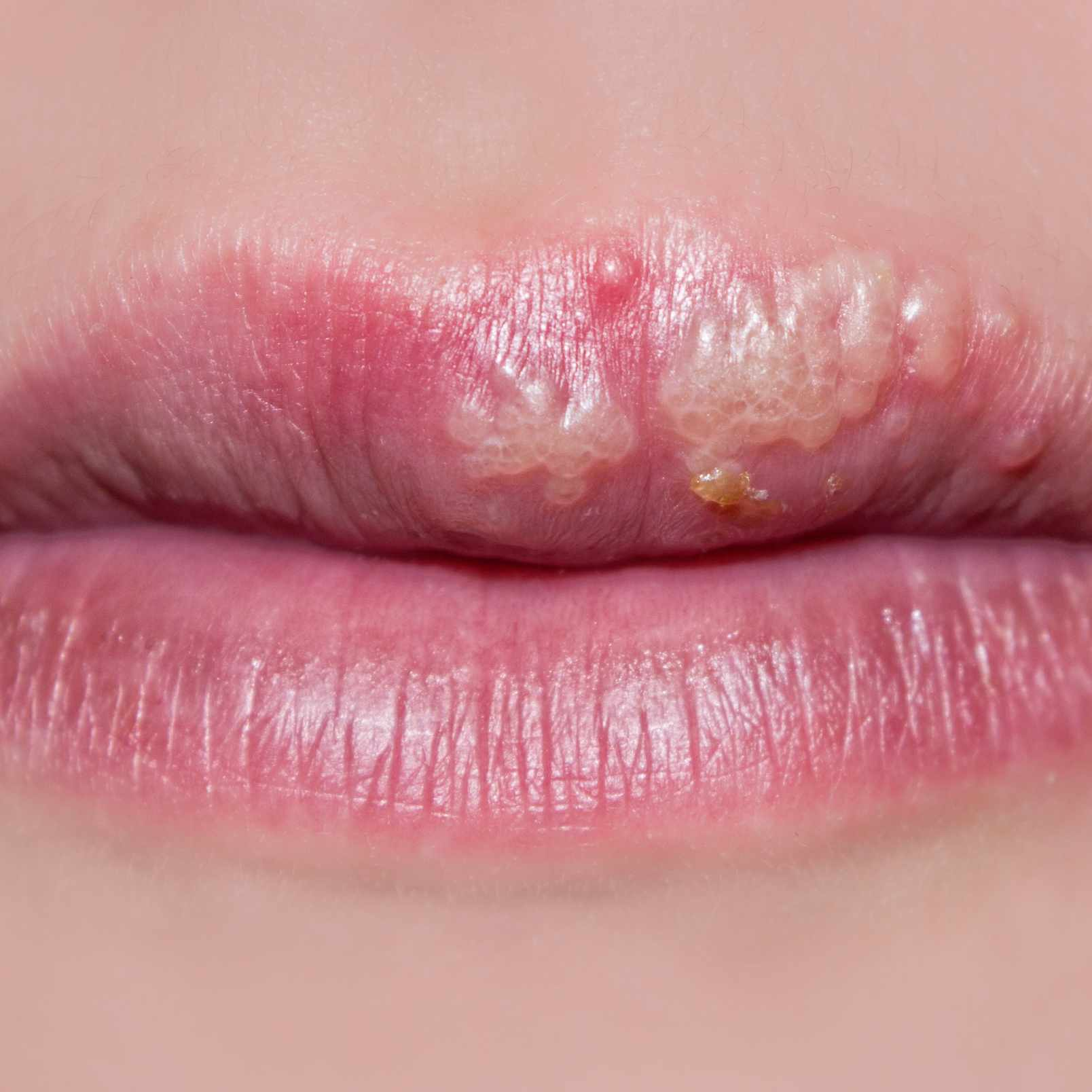 a close-up of a woman's lips, with cold sores