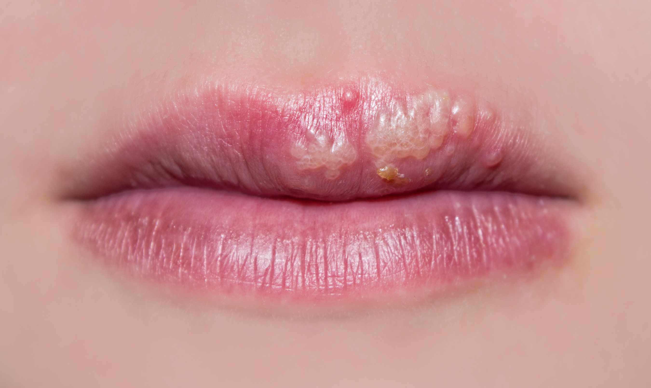 a close-up of a woman's lips with cold sores