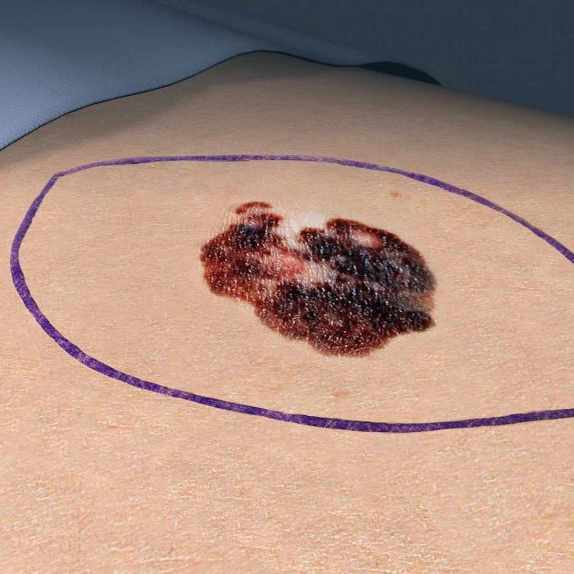 medical illustration of a skin lesion melanoma. cancer