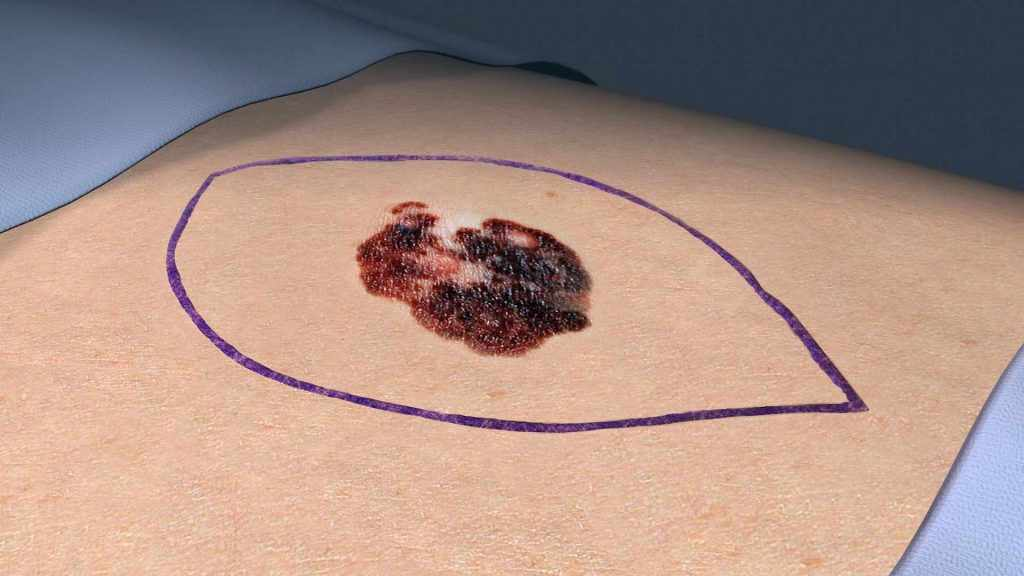 medical illustration of a melanoma skin cancer