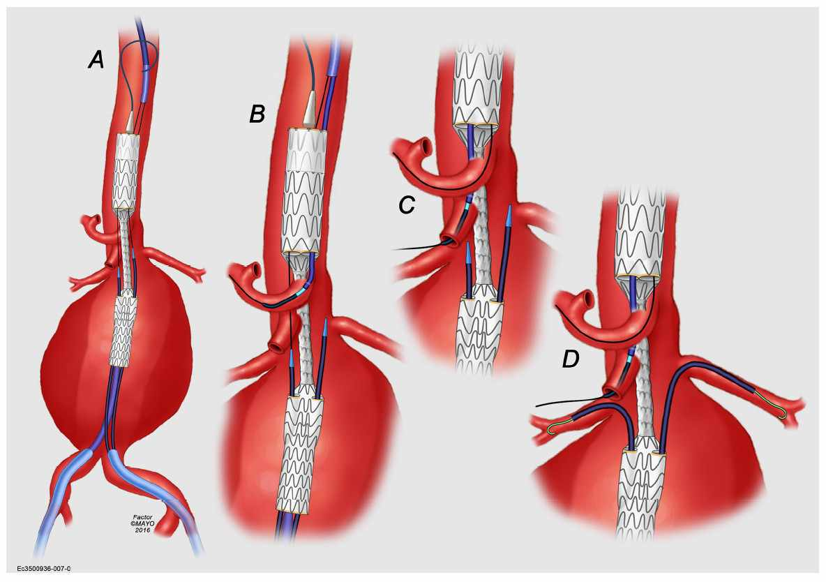 medial illustration of stent procedure