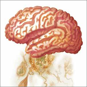 a medical illustration of a brain with Alzheimer's disease
