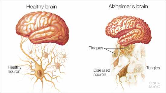 a medical illustration of a healthy brain and one with Alzheimer's disease