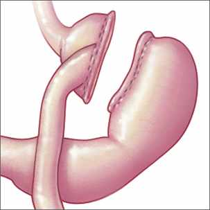 a medical illustration of a sleeve gastrectomy gastric bypass procedure