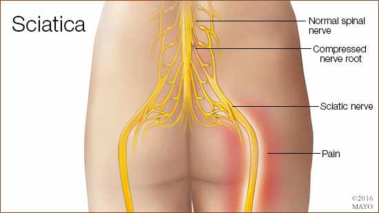 a medical illustration of sciatica