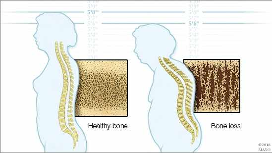 a medical illustration showing healthy bone and bone loss, as well as a normal spine and one curved due to bone loss