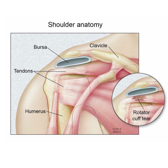 medical illustration of shoulder anatomy including rotator cuff tear
