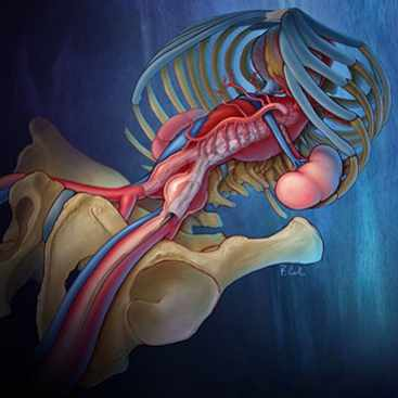 Discovery's Edge medical illustration of aortic-aneurysm