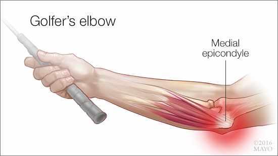 a medical illustration of medial epicondylitis, or golfer's elbow