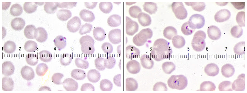 a slide of unidentified blood cells from the Parasite Wonders blog