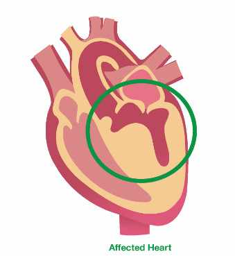 medical illustration of hypertrophic cardiomyopathy