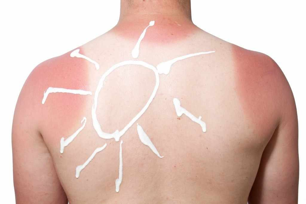 young person's back with sunburn and sunscreen