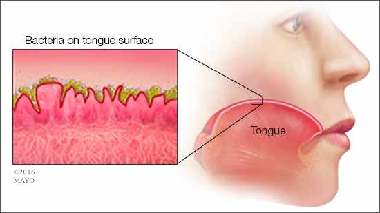 medial illustration of mouth and tongue for bad breath or halitosis