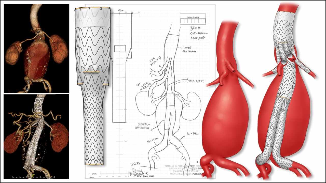 Ilustración de la planificación quirúrgica de un paciente tratado con uno de los primeros implantes para humanos del injerto y estent Gore TAMBE para tratar un aneurisma aórtico complejo.