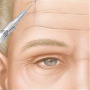 a medical illustration of Botox injections for forehead wrinkles