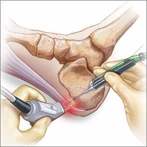 a medical illustration of minimally invasive treatment for plantar fasciitis