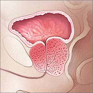 a medical illustration of prostatitis, a swollen prostate