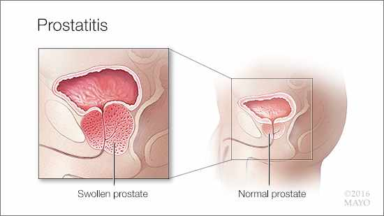 a medical illustration of prostatitis, a swollen prostate and a normal prostate