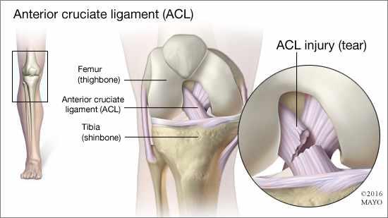 Ilustración médica del ligamento cruzado anterior y de un desgarre del mismo