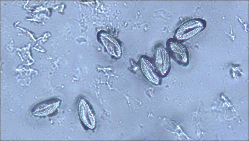 a slide of an unidentified parasite from the Parasite Wonders blog