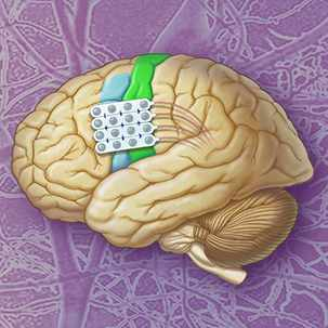cortical stimulation illustration