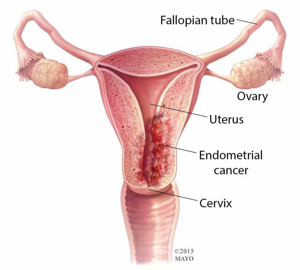 medical illustration of endometrial cancer