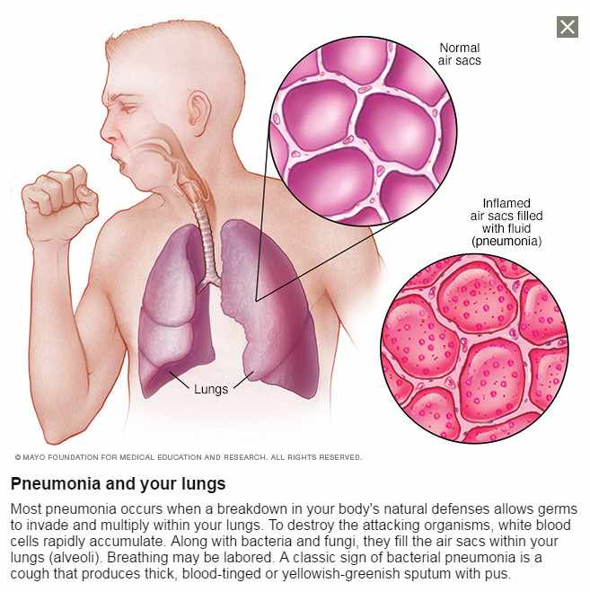 a medical illustration of a person coughing and battling inflamed air sacs because of pneumonia