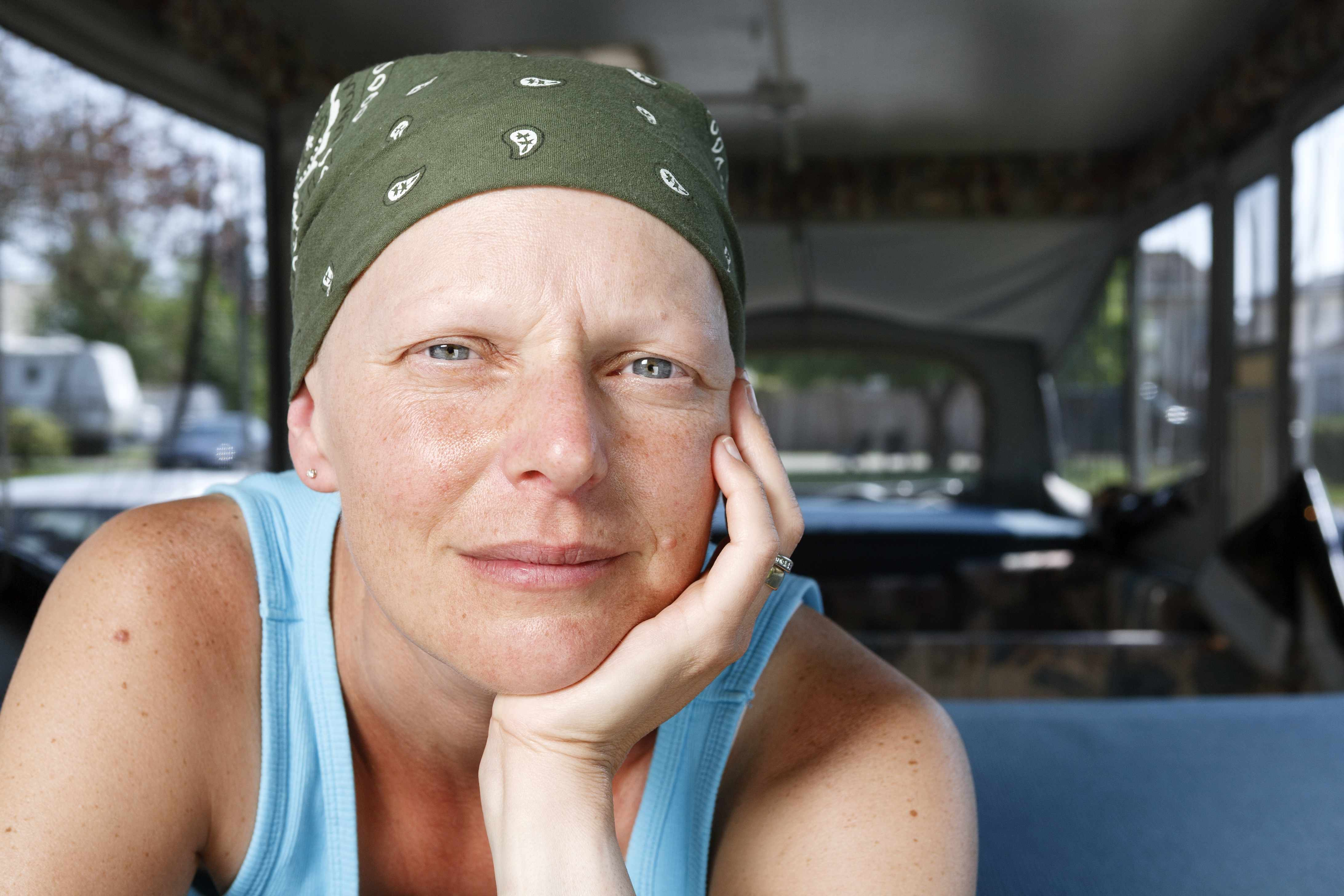 a woman with a headscarf, perhaps due to chemo therapy treatment for cancer, looking pensively into the camera