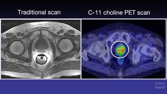 Image of prostate and C-11 choline PET scan