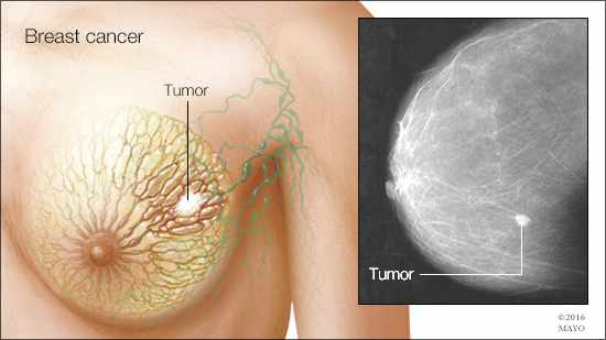 a medical illustration and radiologic image of breast cancer