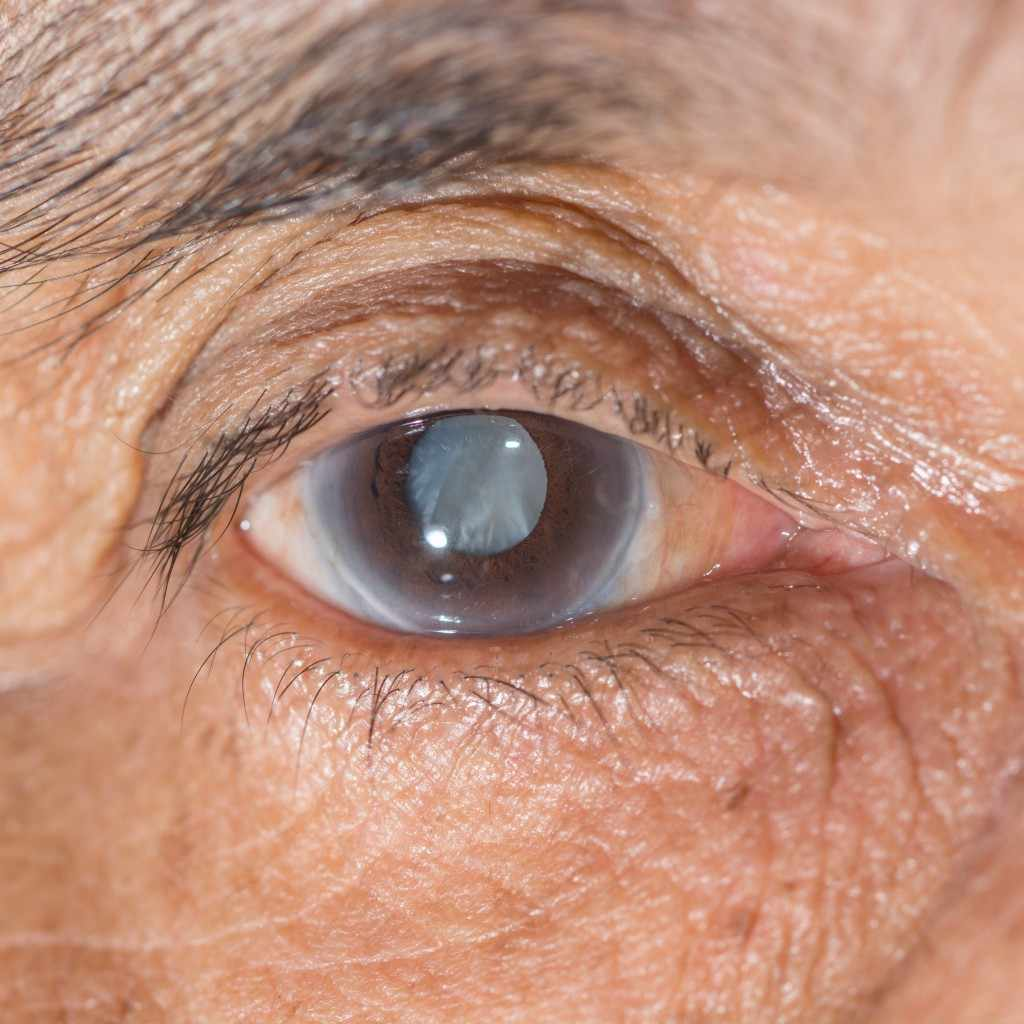 closeup of person's eye with cloudy vision cataract