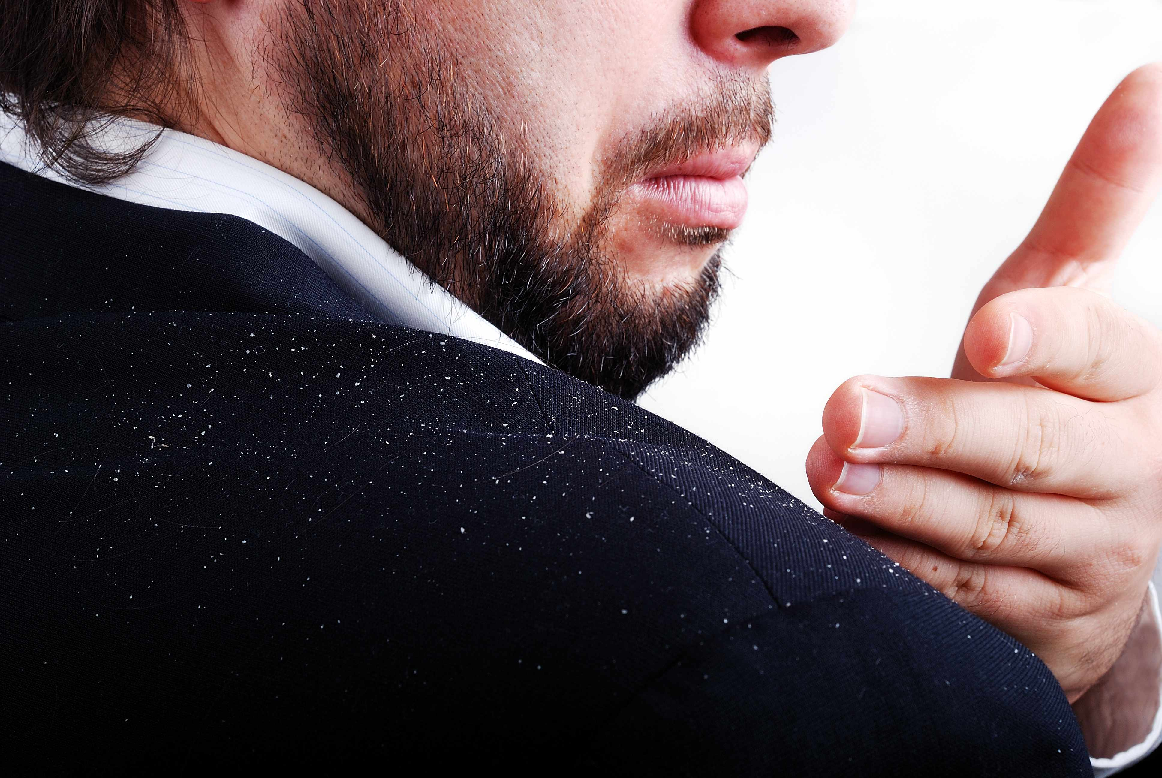 a businessman brushing flakes of dandruff off his jacket