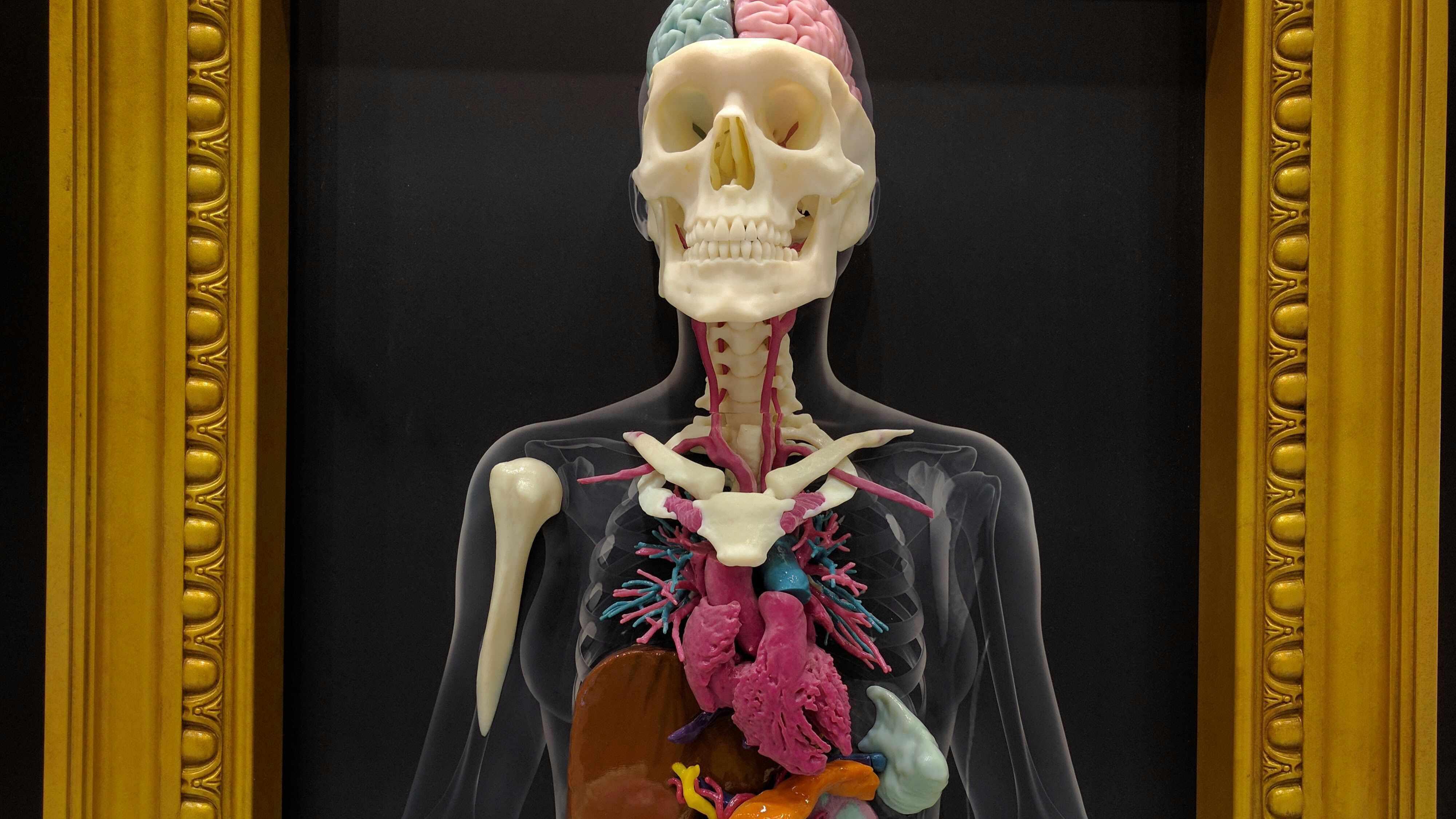 Modelos tridimensionales de Mayo Clinic transportan la anatomía del ...