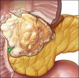 a medical illustration of pancreatic cancer