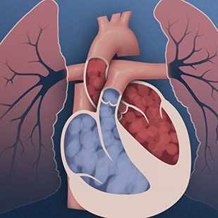 animation still of pulmonary hypertension in the lungs